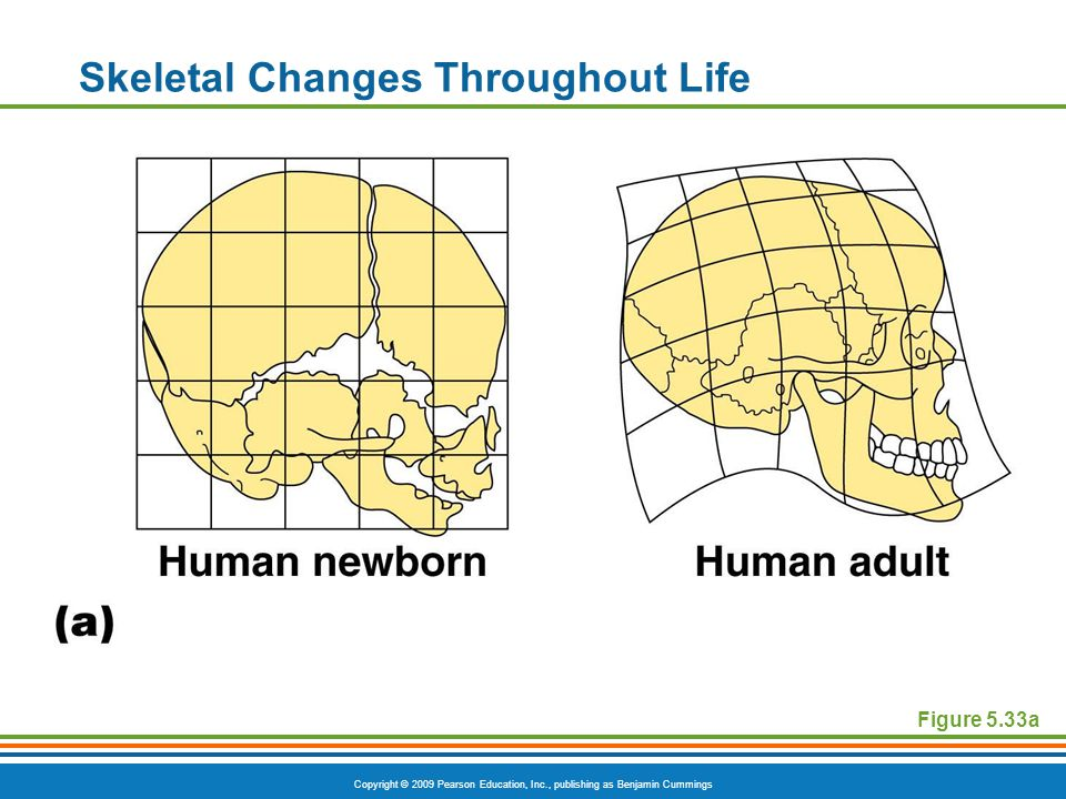 Copyright © 2009 Pearson Education, Inc., publishing as Benjamin Cummings Skeletal Changes Throughout Life Figure 5.33a
