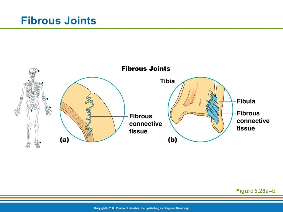 Copyright © 2009 Pearson Education, Inc., publishing as Benjamin Cummings Cartilaginous Joints  Bones connected by cartilage  Example :  Symphysis joints- fibrocartilage  Pubic symphysis  Intervertebral joints  Synchondroses- hyaline cartilage  Connect ribs to sternum