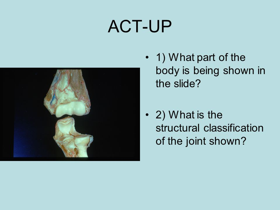 1) What part of the body is being shown in the slide? 2) What is the structural classification of the joint shown?