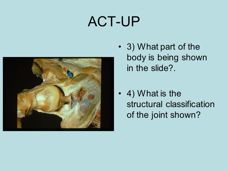 ACT-UP 3) What part of the body is being shown in the slide?. 4) What is the structural classification of the joint shown?