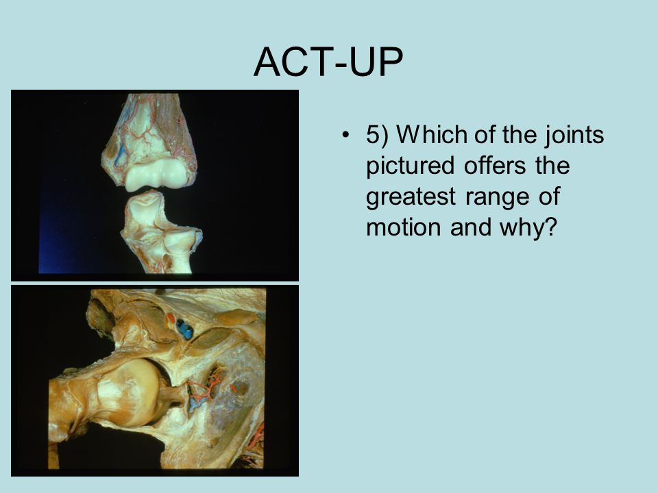 ACT-UP 5) Which of the joints pictured offers the greatest range of motion and why?