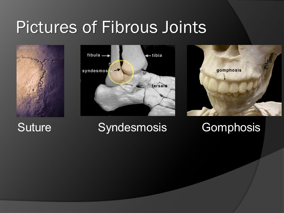 Pictures of Fibrous Joints Suture SyndesmosisGomphosis