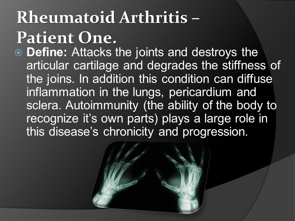 Rheumatoid Arthritis continued Symptoms:  Joint swelling  Join pain  Morning stiffness that last for hours  Red puffy hands caused by rheumatoid nodules.