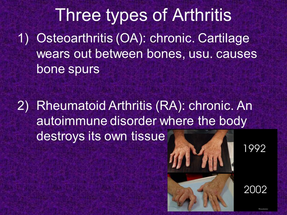 3) Gouty Arthritis (Gout): Uric acid accumulates in the blood and is deposited as needle-shaped crystals in the joints.