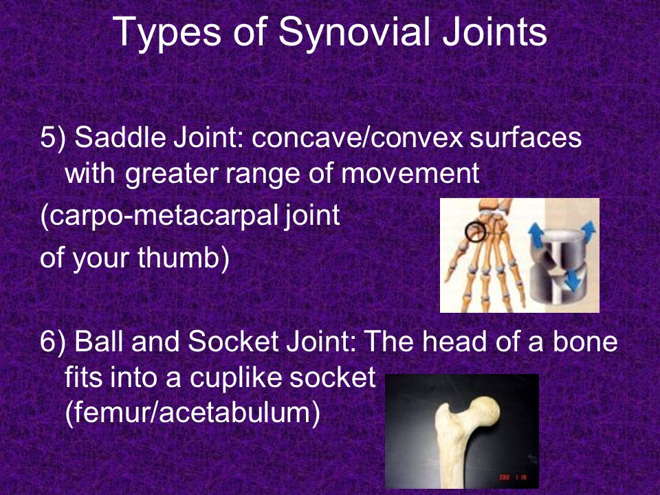 JOINTS GONE BAD Arthritis: (Arth=Joint itis=Inflammation) *Disease that causes pain, stiffness, and swelling of a joint.