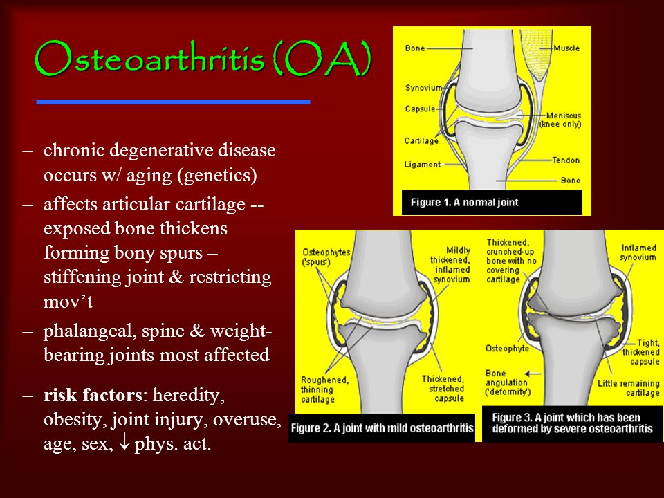 Osteoarthritis (OA) –chronic degenerative disease occurs w/ aging (genetics) –affects articular cartilage -- exposed bone thickens forming bony spurs – stiffening joint & restricting mov't –phalangeal, spine & weight- bearing joints most affected –risk factors: heredity, obesity, joint injury, overuse, age, sex,  phys.