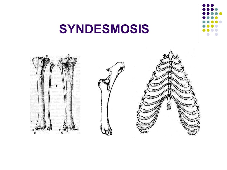 SYNDESMOSIS  Connected by white fibrous tissue or elastic tissue or mix both tissue.
