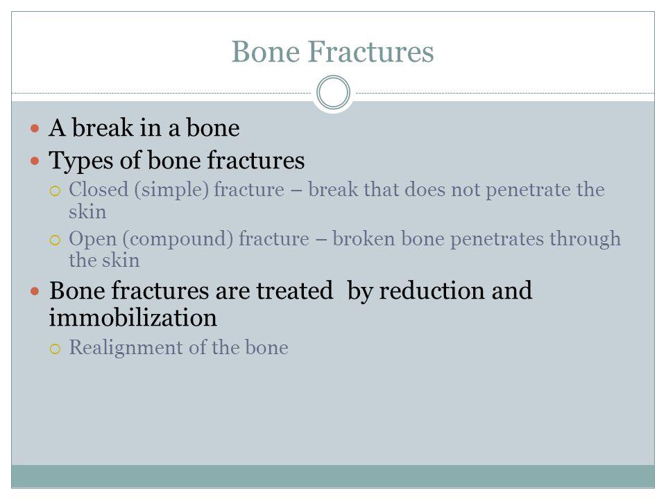 Bone Fractures A break in a bone Types of bone fractures  Closed (simple) fracture – break that does not penetrate the skin  Open (compound) fractur