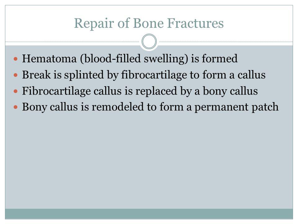 Repair of Bone Fractures Hematoma (blood-filled swelling) is formed Break is splinted by fibrocartilage to form a callus Fibrocartilage callus is repl