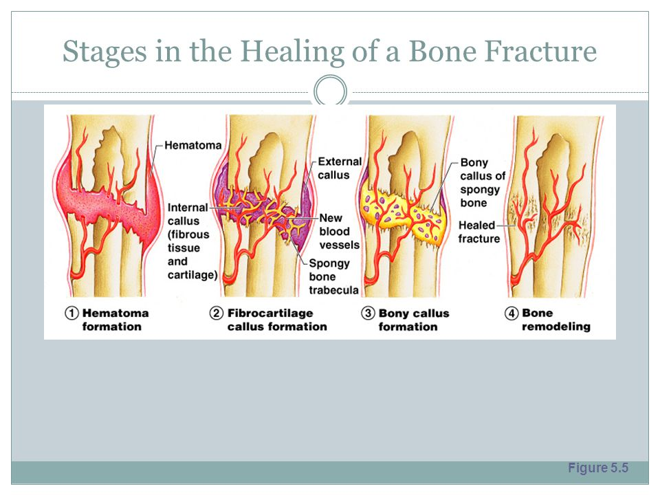 Stages in the Healing of a Bone Fracture Figure 5.5