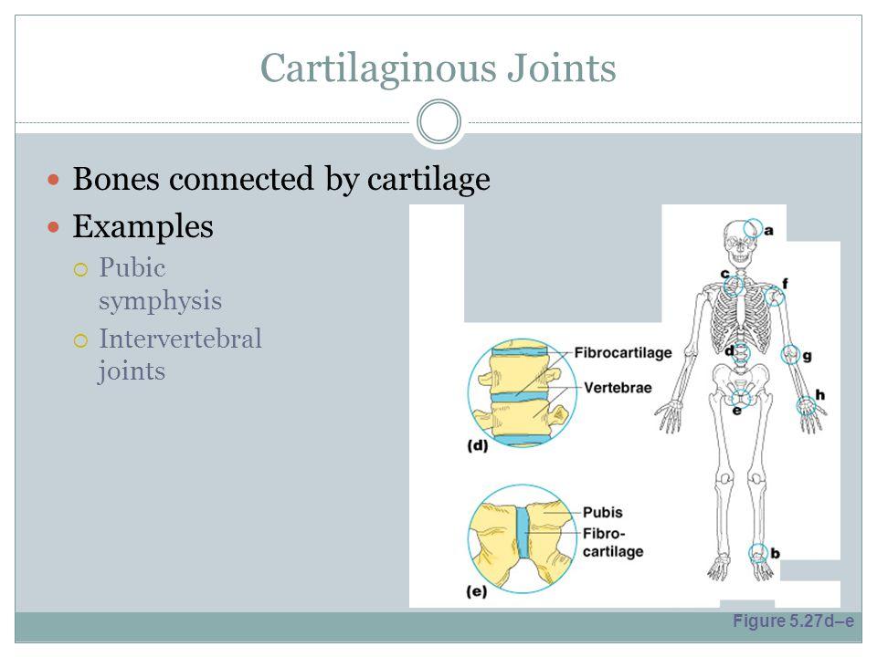 Cartilaginous Joints Bones connected by cartilage Examples  Pubic symphysis  Intervertebral joints Figure 5.27d–e