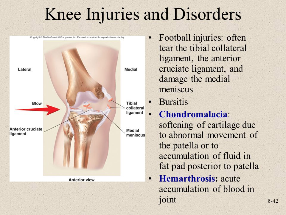 8-42 Knee Injuries and Disorders Football injuries: often tear the tibial collateral ligament, the anterior cruciate ligament, and damage the medial meniscus Bursitis Chondromalacia: softening of cartilage due to abnormal movement of the patella or to accumulation of fluid in fat pad posterior to patella Hemarthrosis: acute accumulation of blood in joint