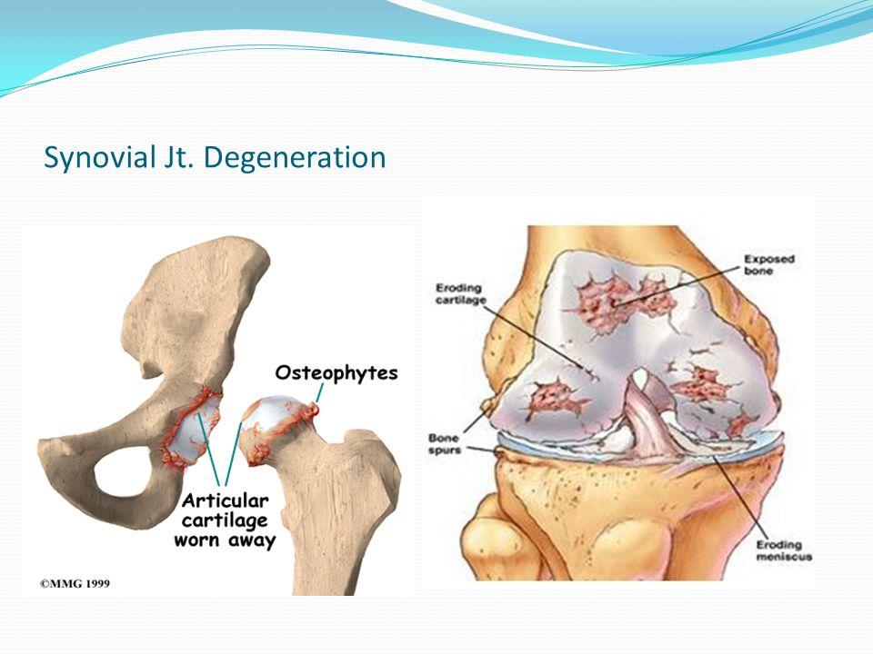 Synovial Jt. Degeneration