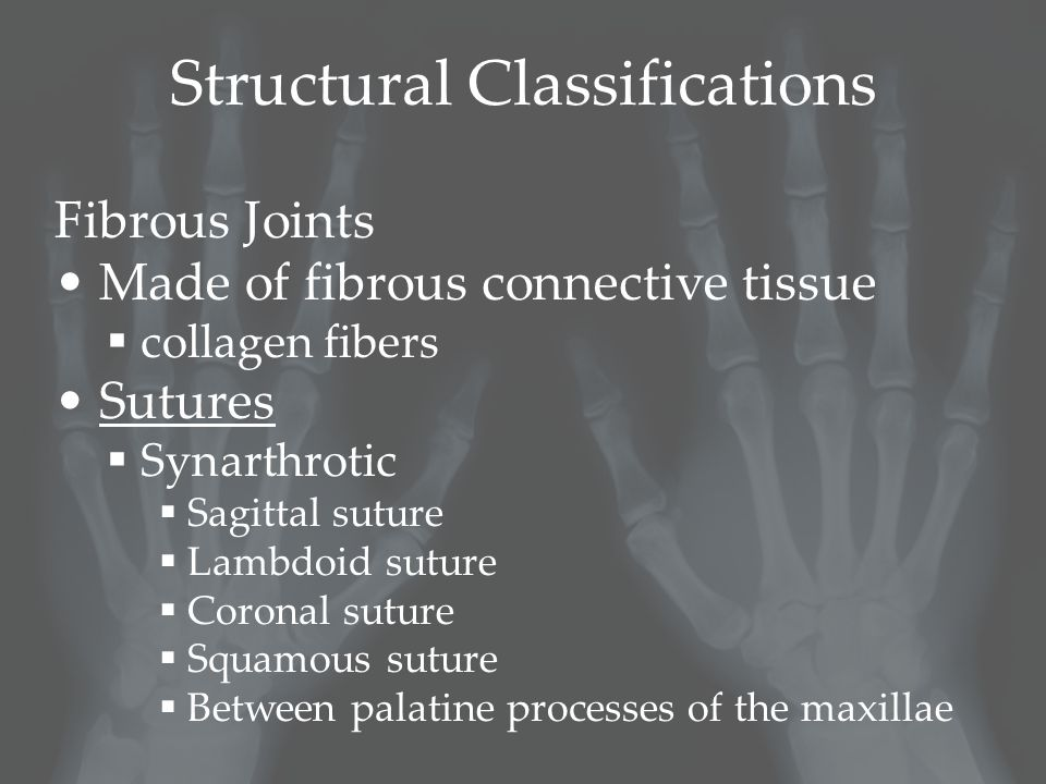 Structural Classifications Fibrous Joints Made of fibrous connective tissue  collagen fibers Sutures  Synarthrotic  Sagittal suture  Lambdoid suture  Coronal suture  Squamous suture  Between palatine processes of the maxillae