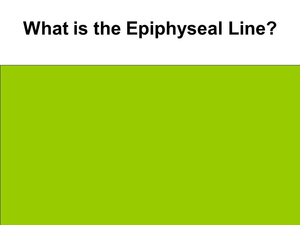What is the Epiphyseal Line.
