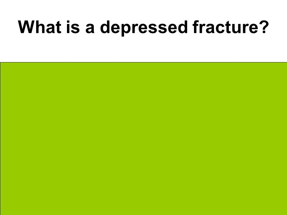 What is a depressed fracture Bone is sunken in Typical in skull