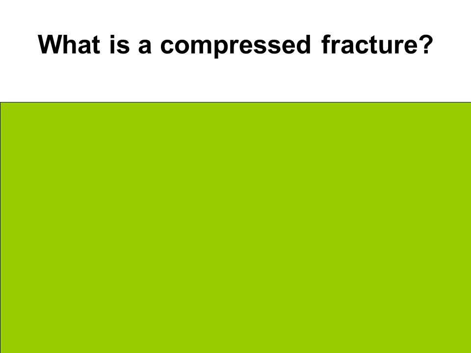 What is a compressed fracture Bone is crushed into a million little pieces Common in porous bones