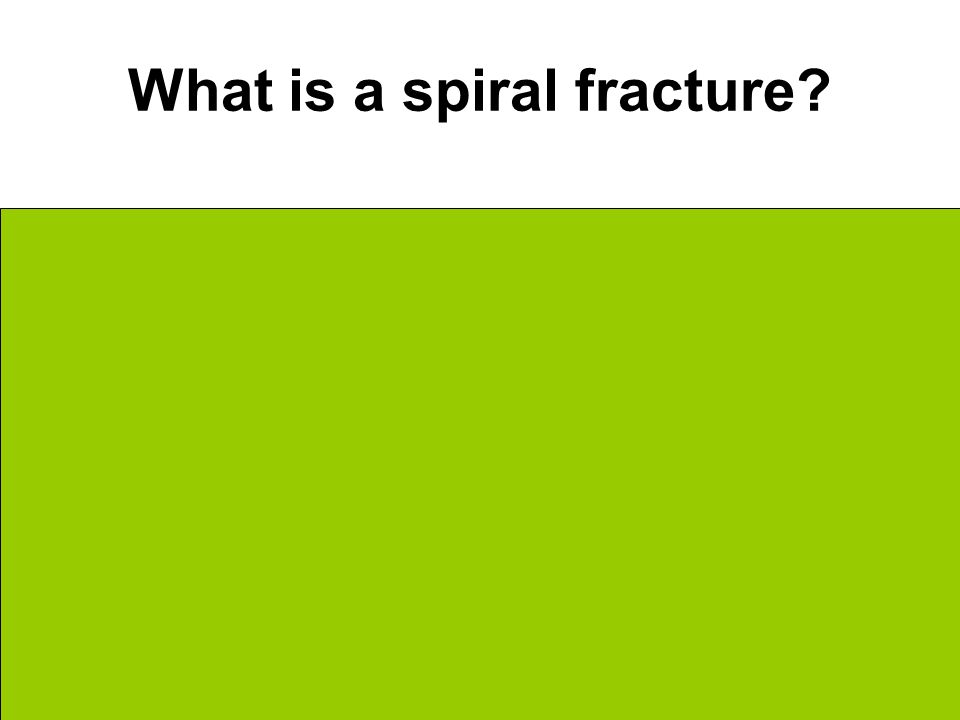 What is a spiral fracture Ragged break Break on the diagonal Caused by unusual twisting