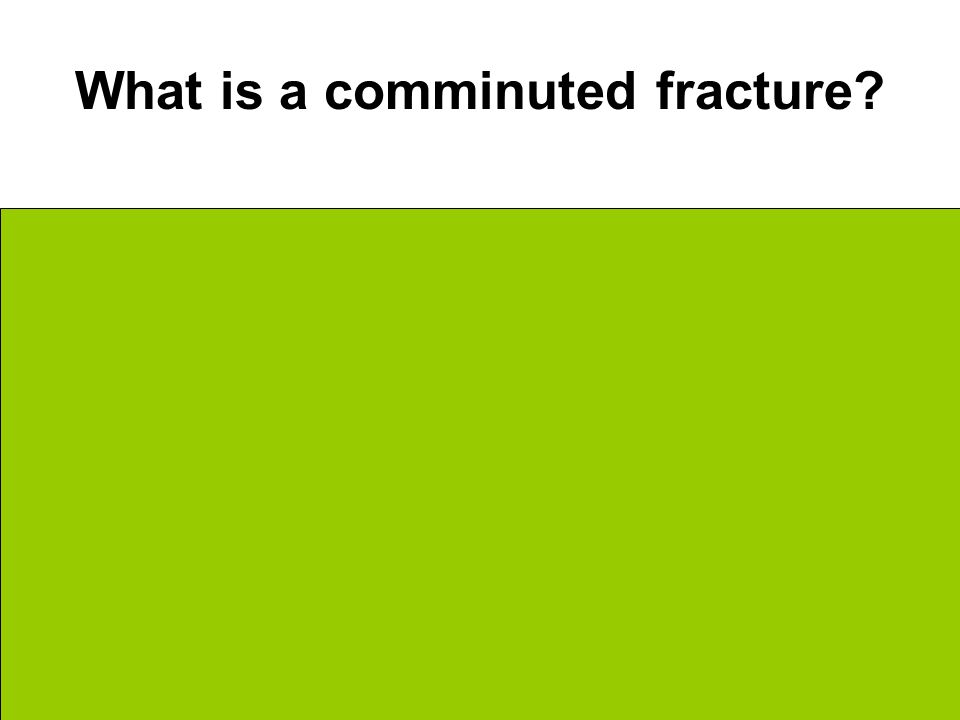What is a comminuted fracture Bone breaks into 3 or more pieces