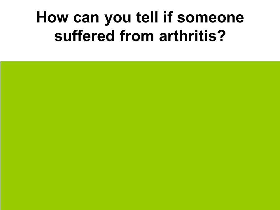 How can you tell if someone suffered from arthritis.