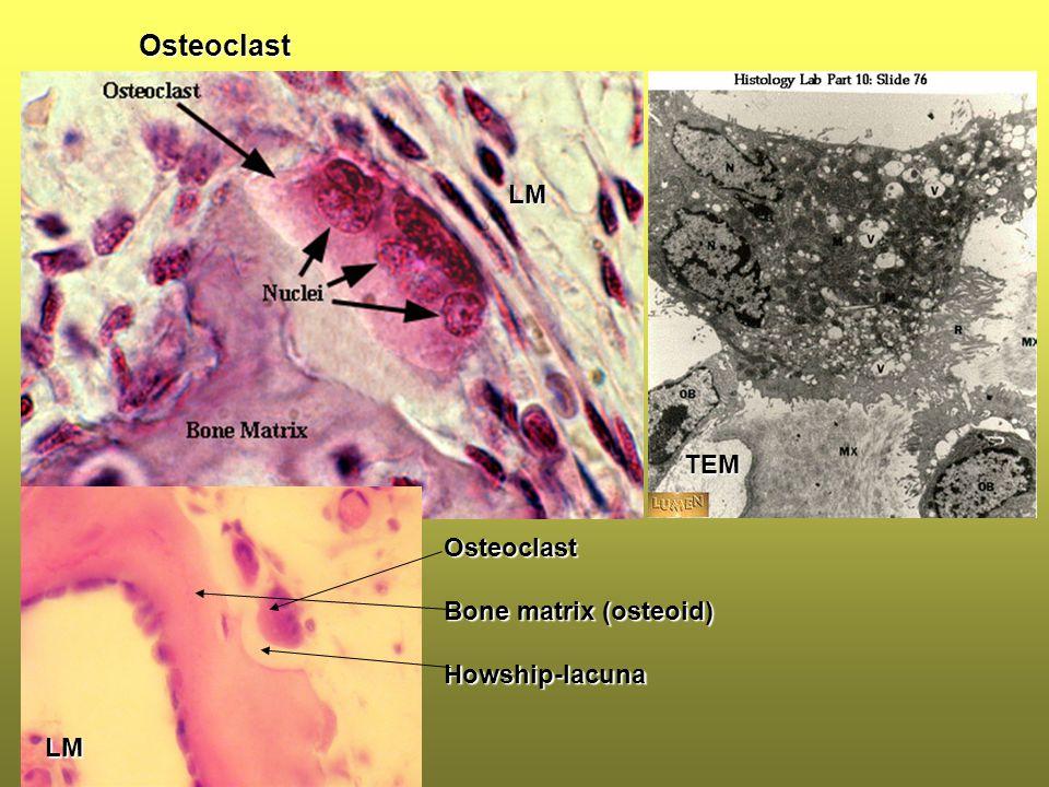 Osteoclast LM TEM LM Osteoclast Bone matrix (osteoid) Howship-lacuna
