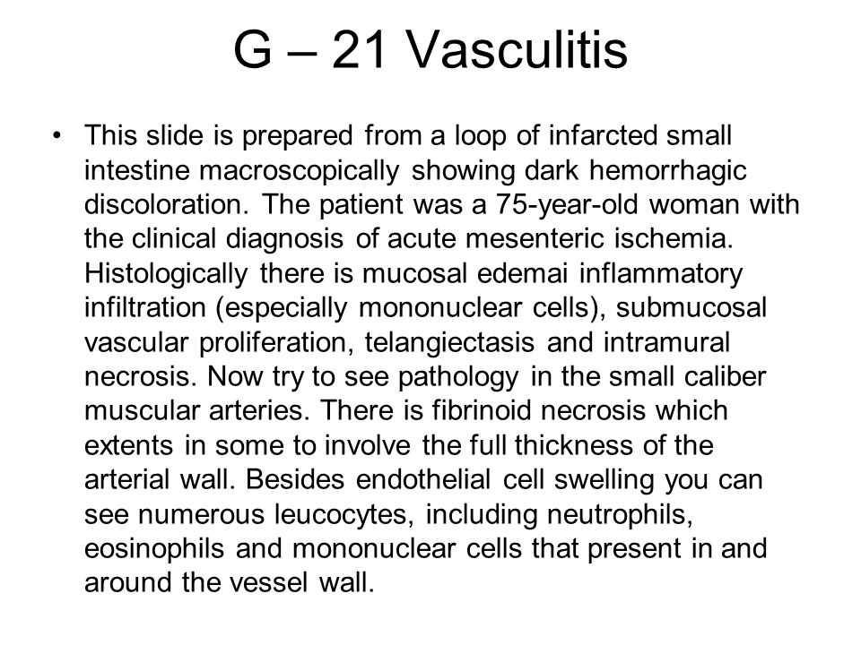 G – 21 Vasculitis This slide is prepared from a loop of infarcted small intestine macroscopically showing dark hemorrhagic discoloration. The patient