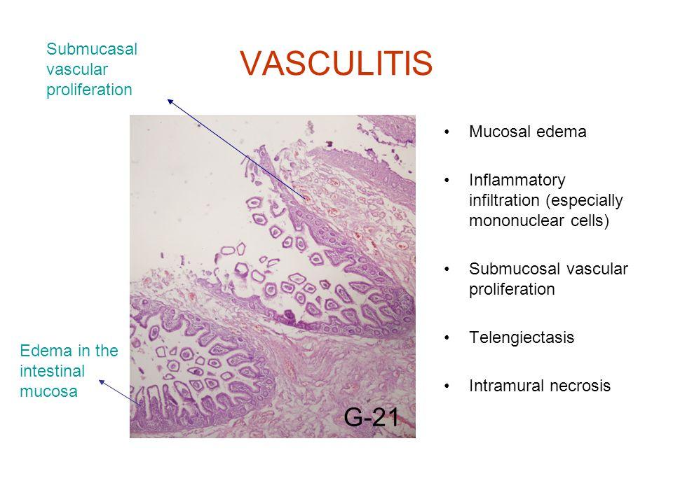 VASCULITIS Mucosal edema Inflammatory infiltration (especially mononuclear cells) Submucosal vascular proliferation Telengiectasis Intramural necrosis G-21 Edema in the intestinal mucosa Submucasal vascular proliferation