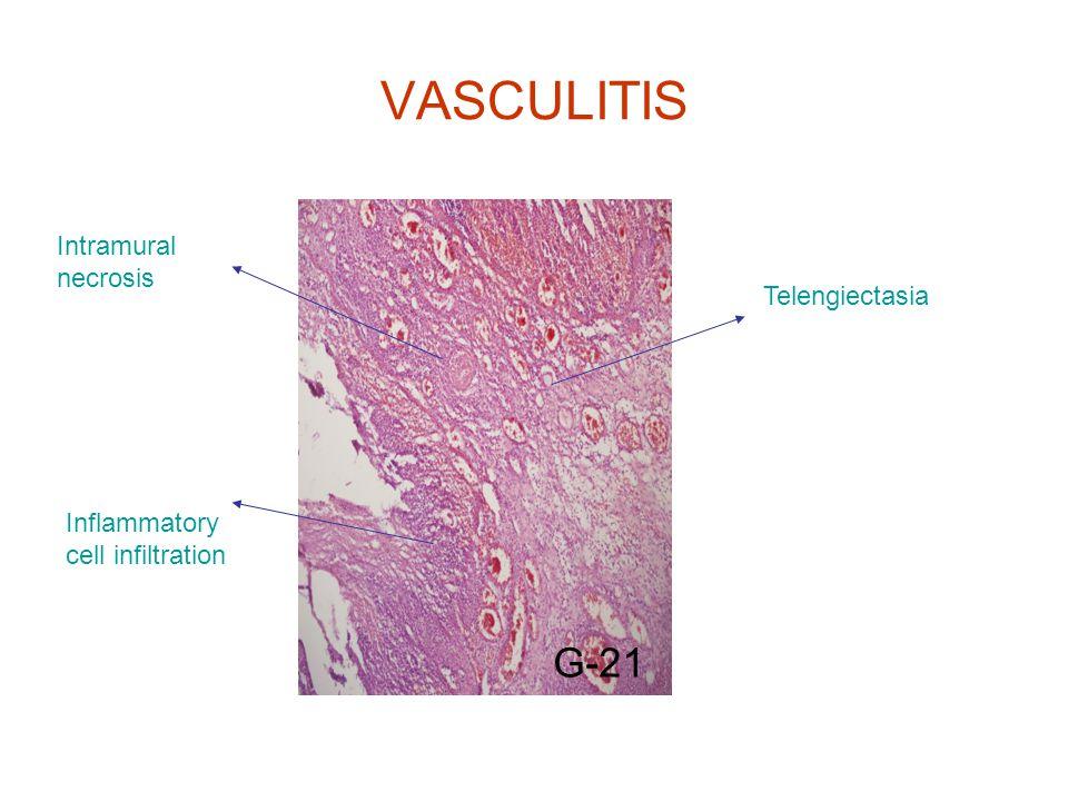 VASCULITIS G-21 Inflammatory cell infiltration Intramural necrosis Telengiectasia