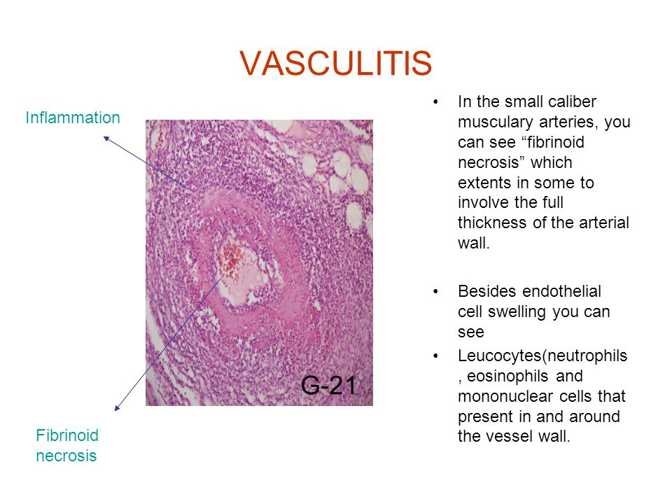 VASCULITIS In the small caliber musculary arteries, you can see fibrinoid necrosis which extents in some to involve the full thickness of the arterial wall.