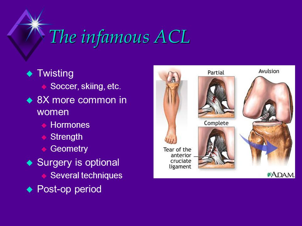 The infamous ACL  Twisting  Soccer, skiing, etc.  8X more common in women  Hormones  Strength  Geometry  Surgery is optional  Several techniqu