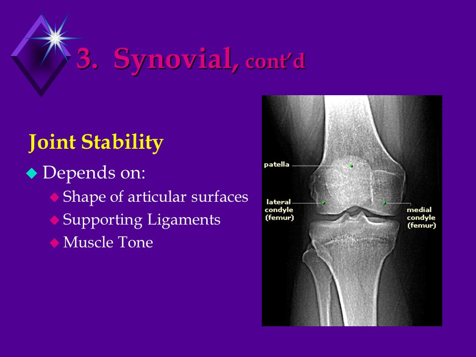 3. Synovial, cont'd  Depends on:  Shape of articular surfaces  Supporting Ligaments  Muscle Tone Joint Stability