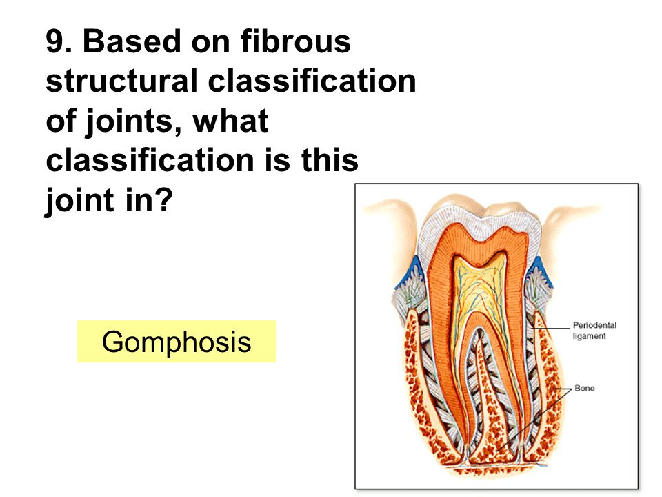 9. Based on fibrous structural classification of joints, what classification is this joint in.