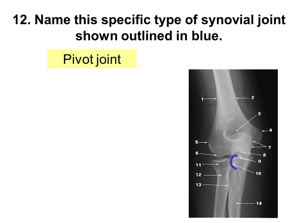 12. Name this specific type of synovial joint shown outlined in blue. Pivot joint