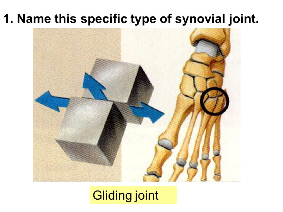 1. Name this specific type of synovial joint. Gliding joint