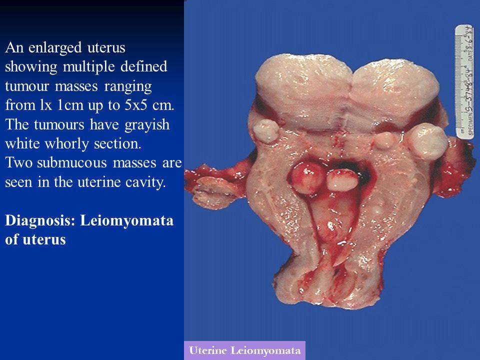 Uterine Leiomyomata An enlarged uterus showing multiple defined tumour masses ranging from lx 1cm up to 5x5 cm. The tumours have grayish white whorly