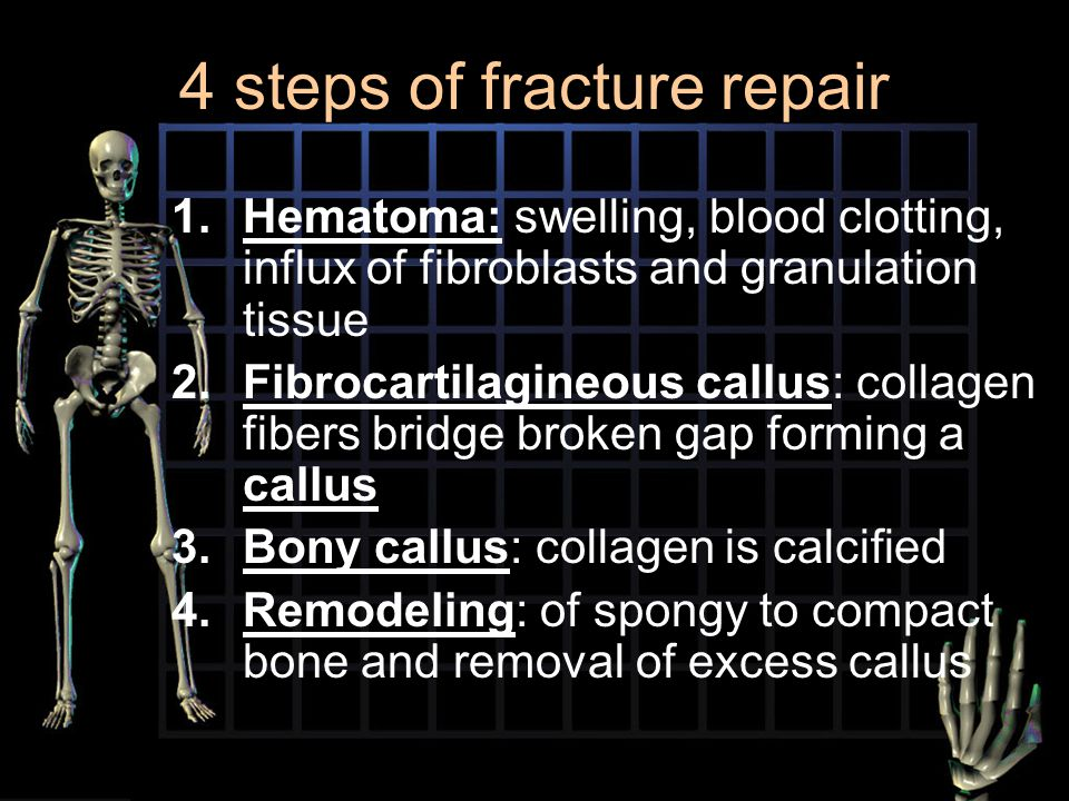 4 steps of fracture repair 1.Hematoma: swelling, blood clotting, influx of fibroblasts and granulation tissue 2.Fibrocartilagineous callus: collagen f