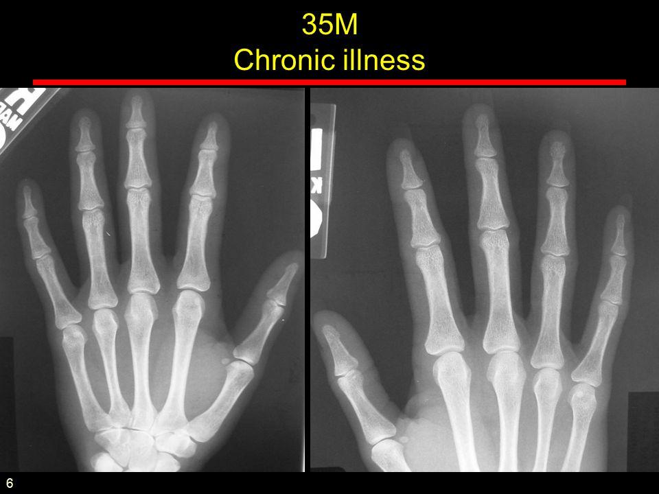 35M Chronic illness 6