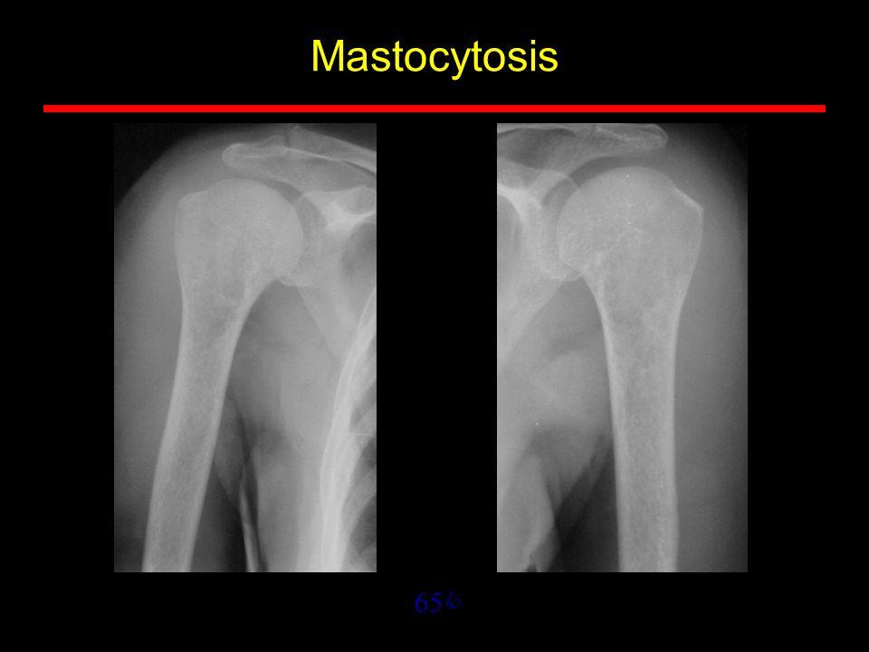 65  Mastocytosis