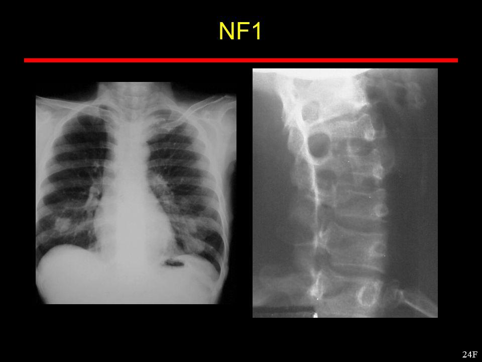 24F NF1