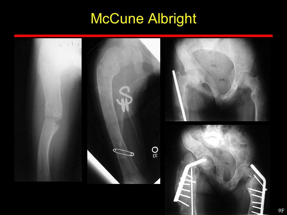 9F McCune Albright
