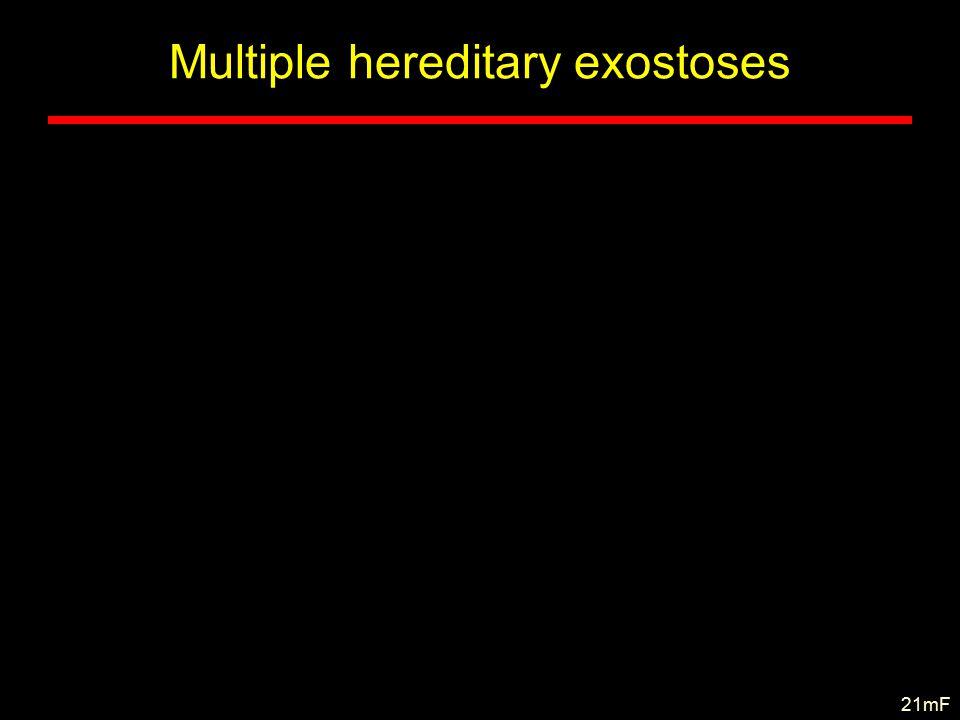 Multiple hereditary exostoses 21mF
