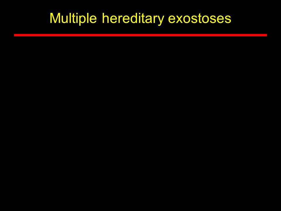 Multiple hereditary exostoses