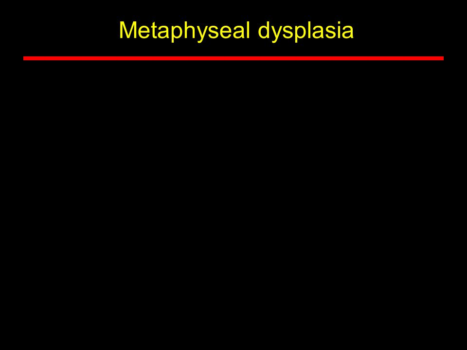 Metaphyseal dysplasia
