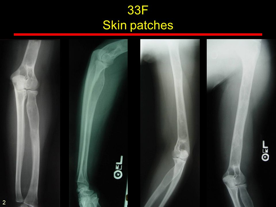Absence of homogentisic acid oxidase Pigmentation Arthropathy Osteoporotic with dense disc calcification Larger joints show DJD