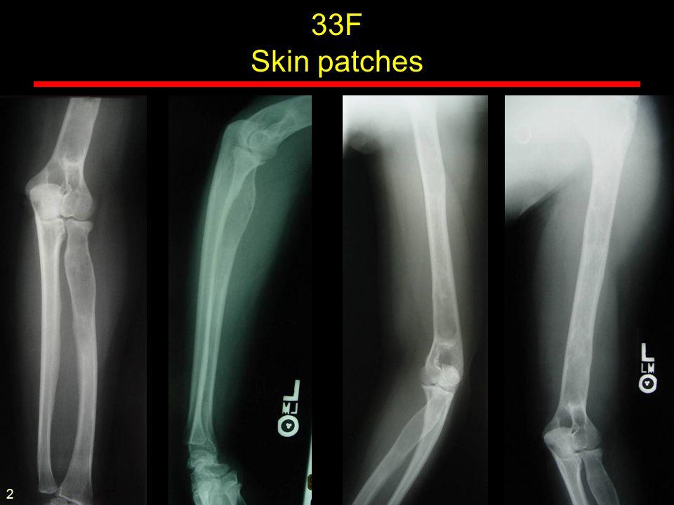 Familial osteolysis 20F