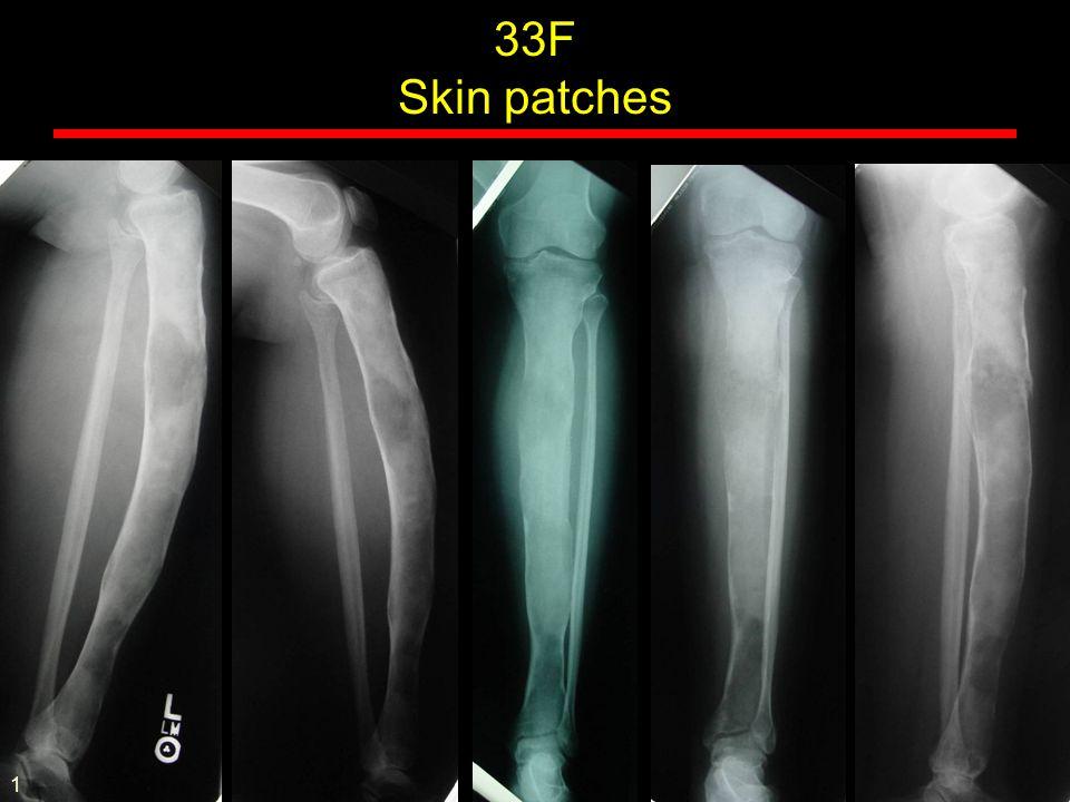 Sandwich vertebrae - Osteopetrosis 57M L hip pain 1