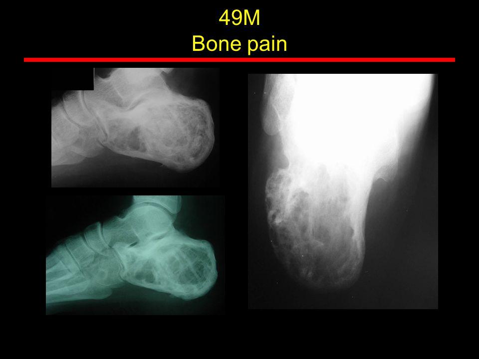49M Bone pain