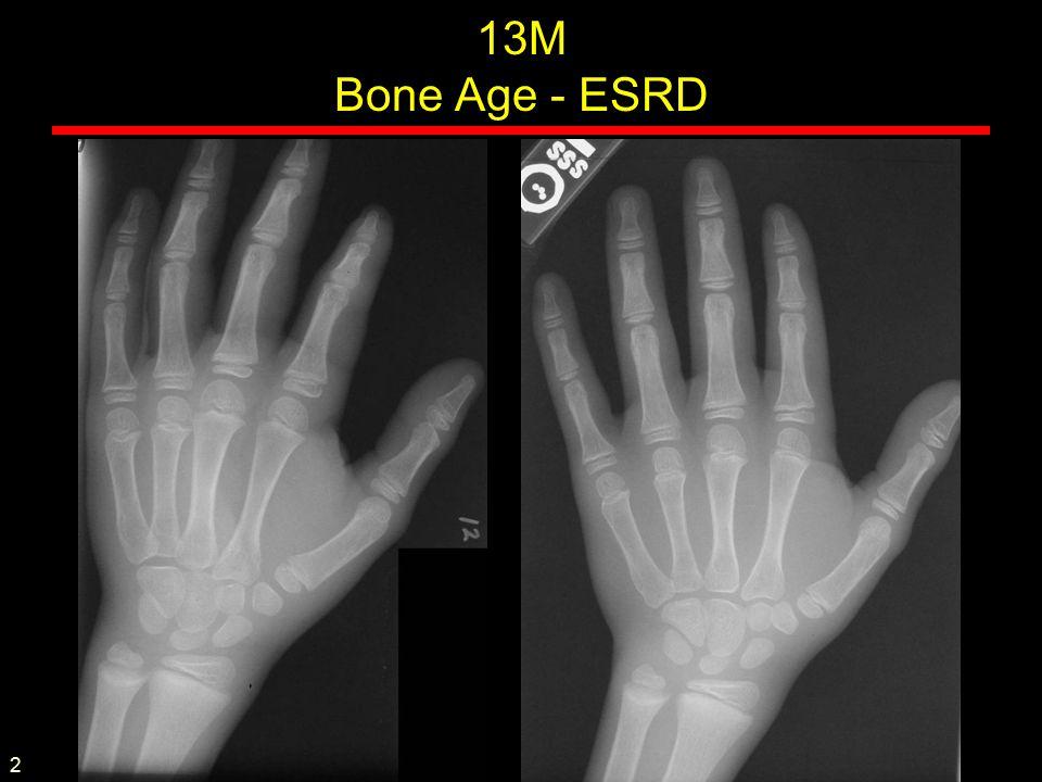 13M Bone Age - ESRD 2