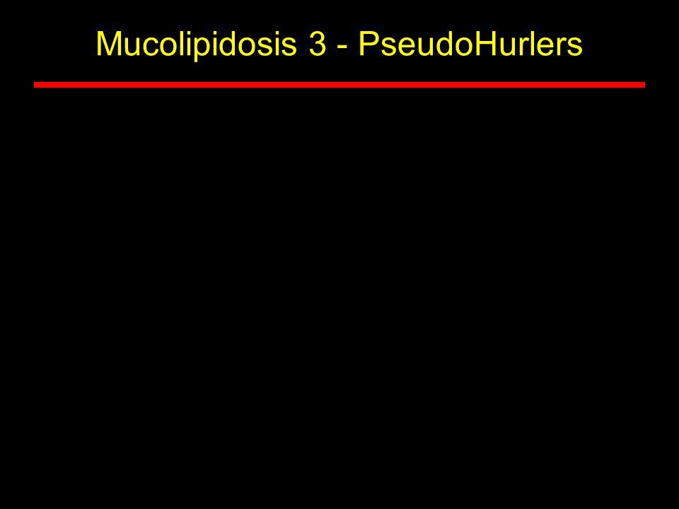 Mucolipidosis 3 - PseudoHurlers