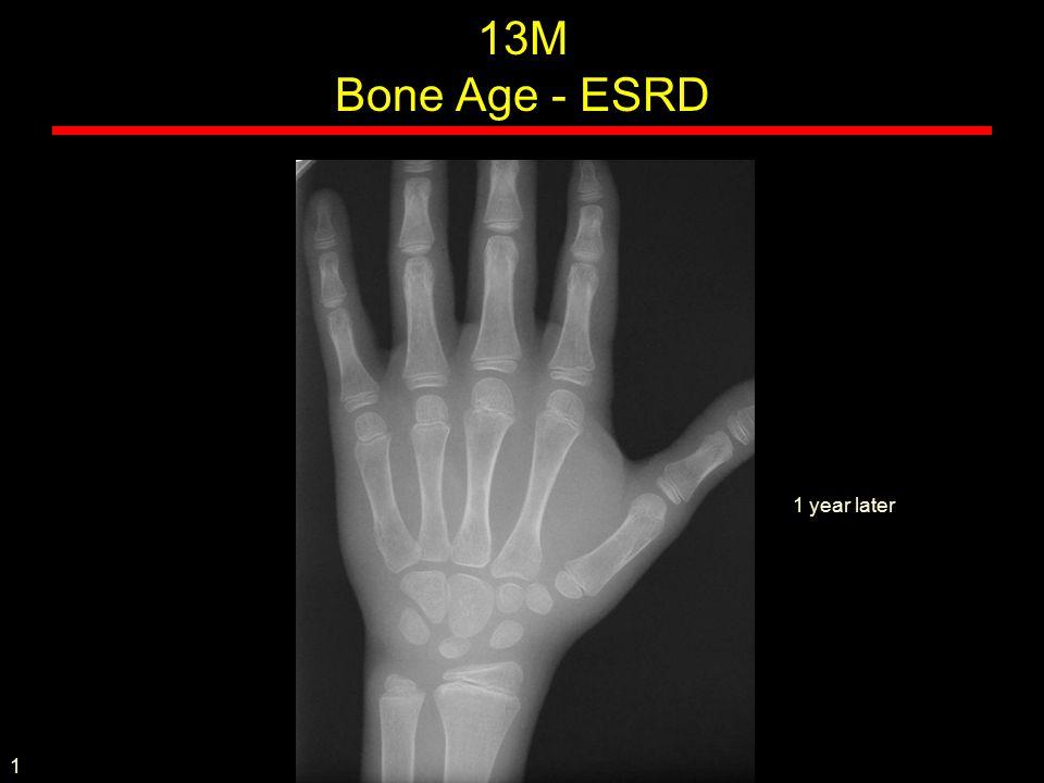 MOP / Stone man Rare, AD, sporadic Presents in childhood Stiffness, Heterotopic ossification Malformed fingers and toes Bone morphogenic protein (BMP) signaling pathway problem Fibrodysplasia ossificans progressiva
